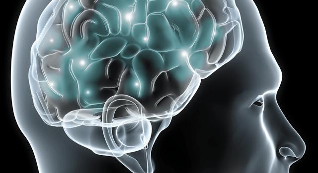 imagen de neurocirugía